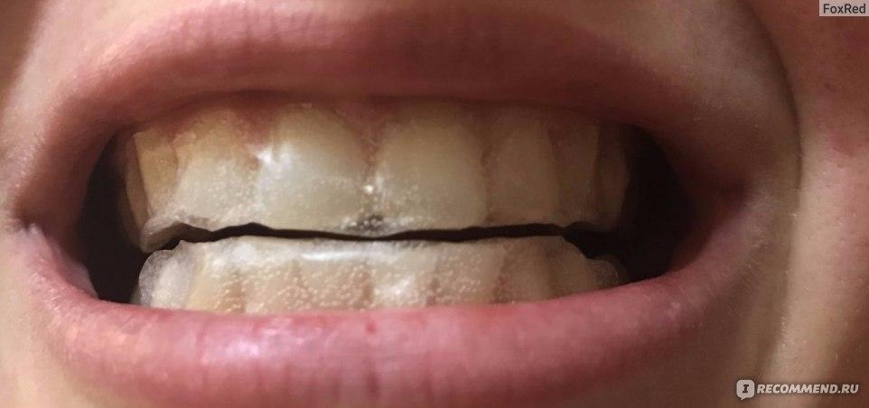 пить после отбеливания зубов