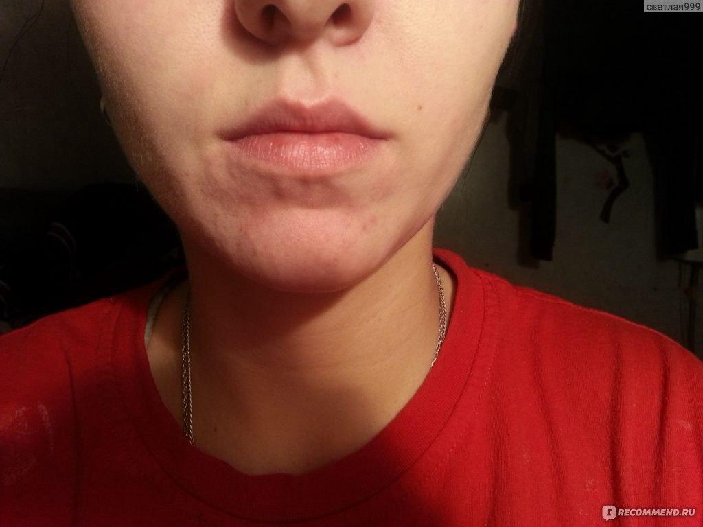 средства от аллергии на коже