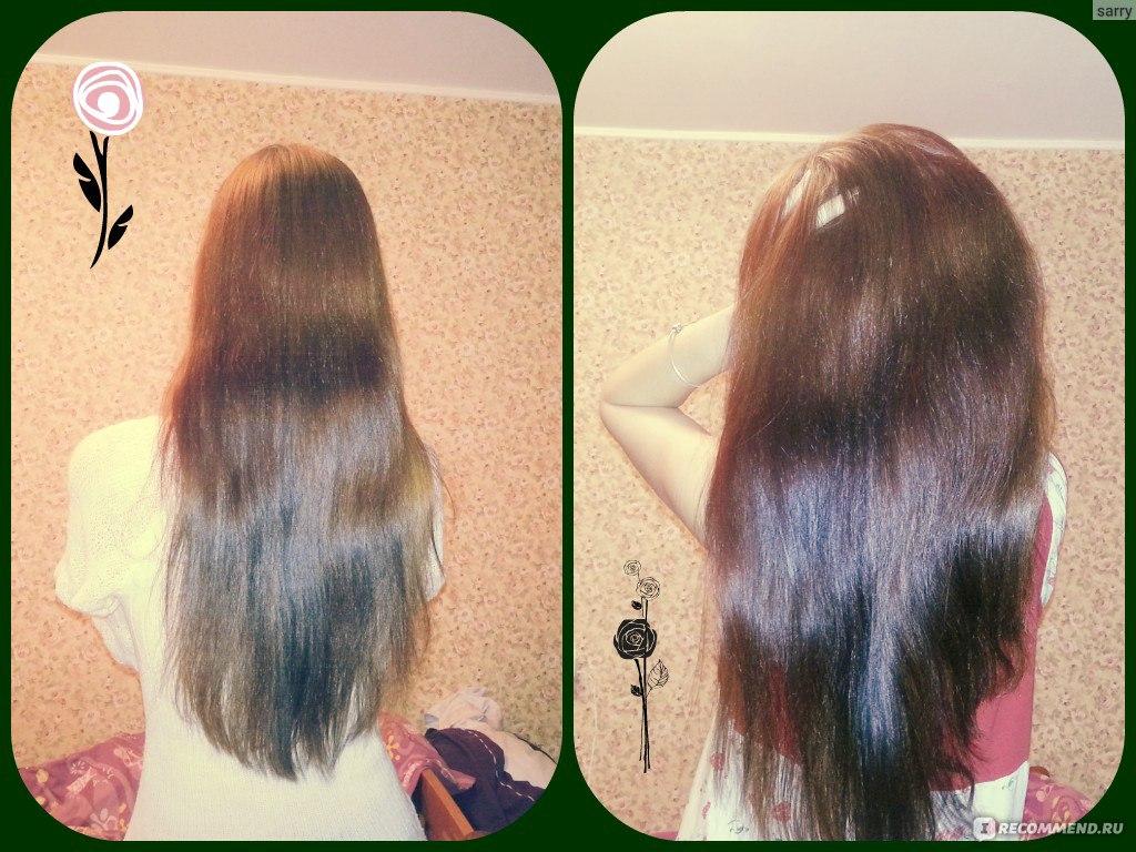 Чем восстановить волосы от выпадения в домашних  914