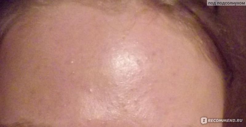 Белые угри и пятно на лице