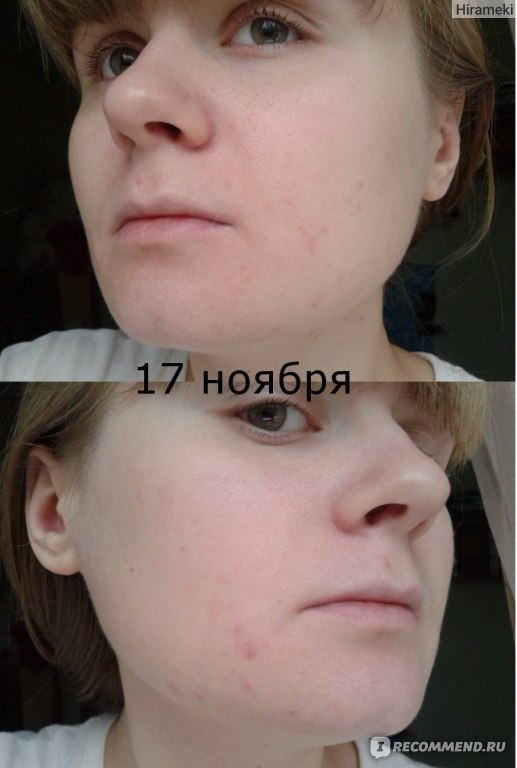 Кожа до и после зинерита