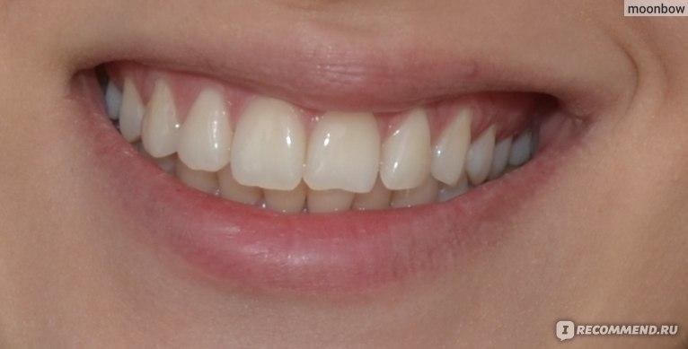 что кушать отбеливание зубов
