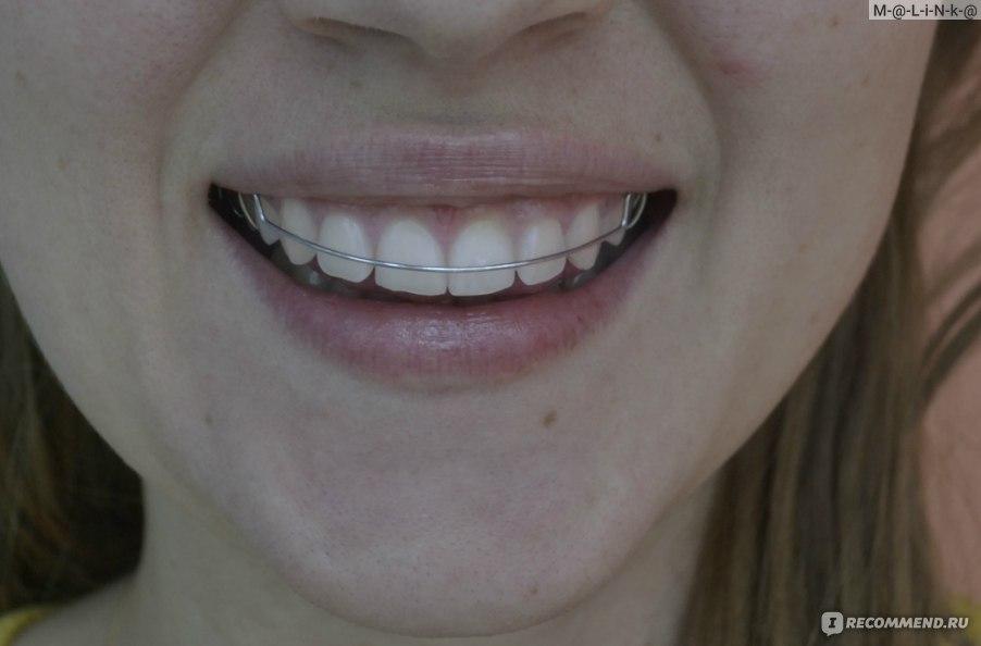 Есть тут те, у кого искривлялись зубы во взрослом возрасте?