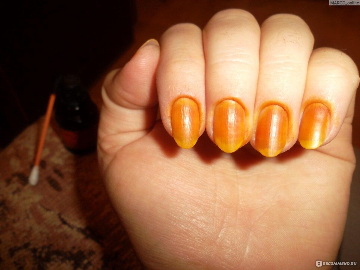 Для чего смазывают йодом ногти