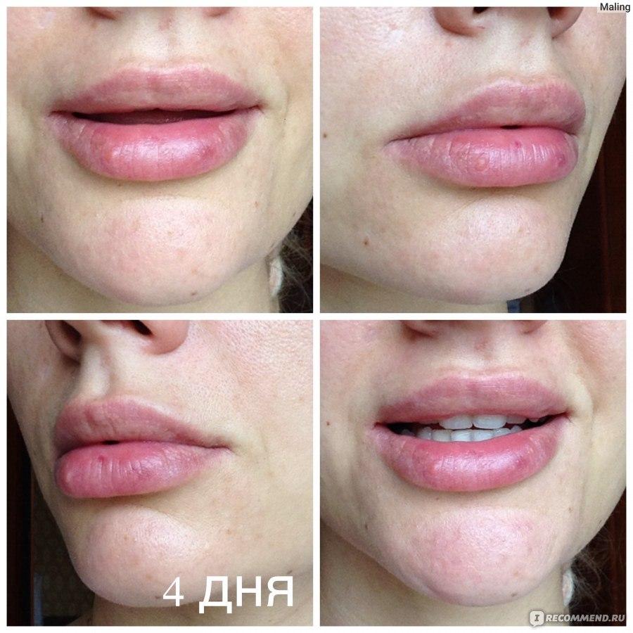 ювидерм для губ какой лучше