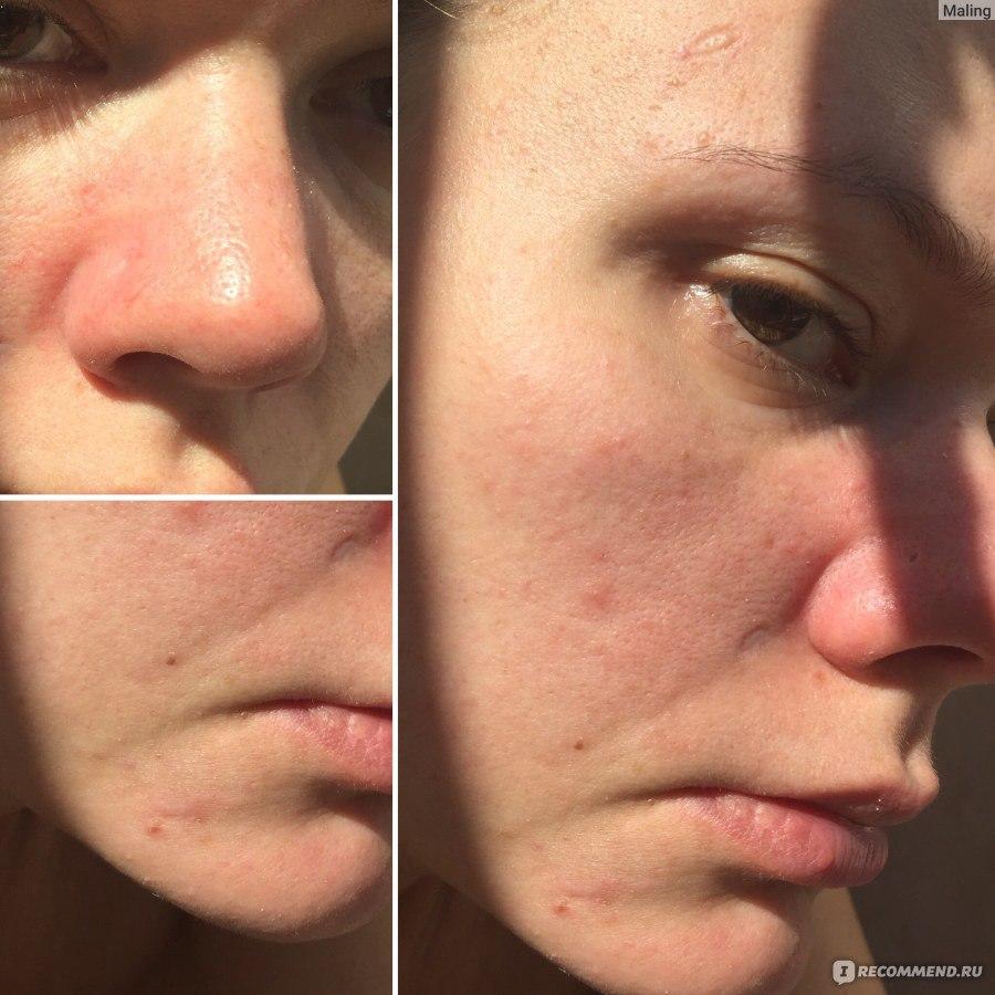Черные Точки На Носу Лечение
