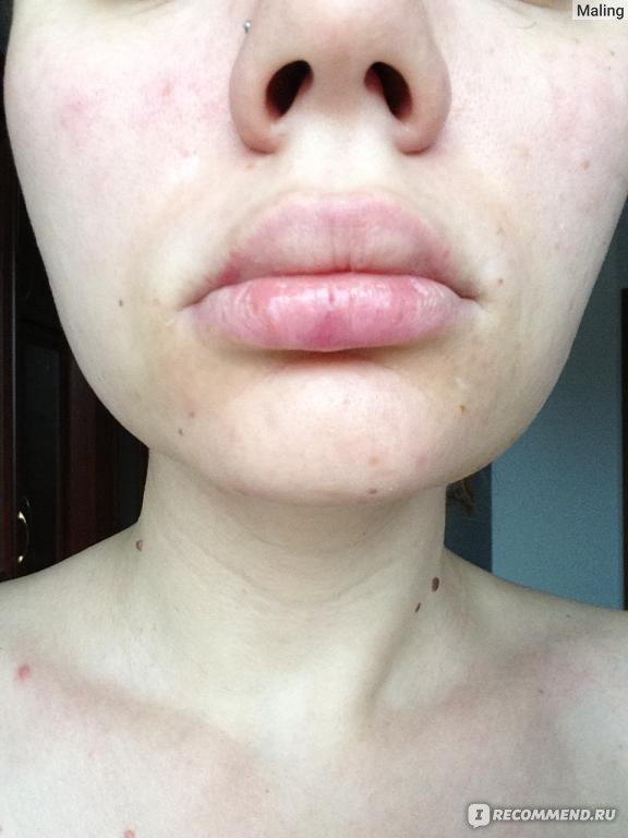 Опухли губы что делать в домашних условиях 457
