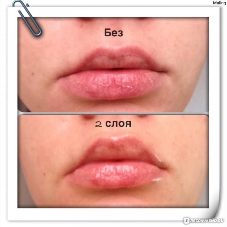Как массировать губы после увеличения