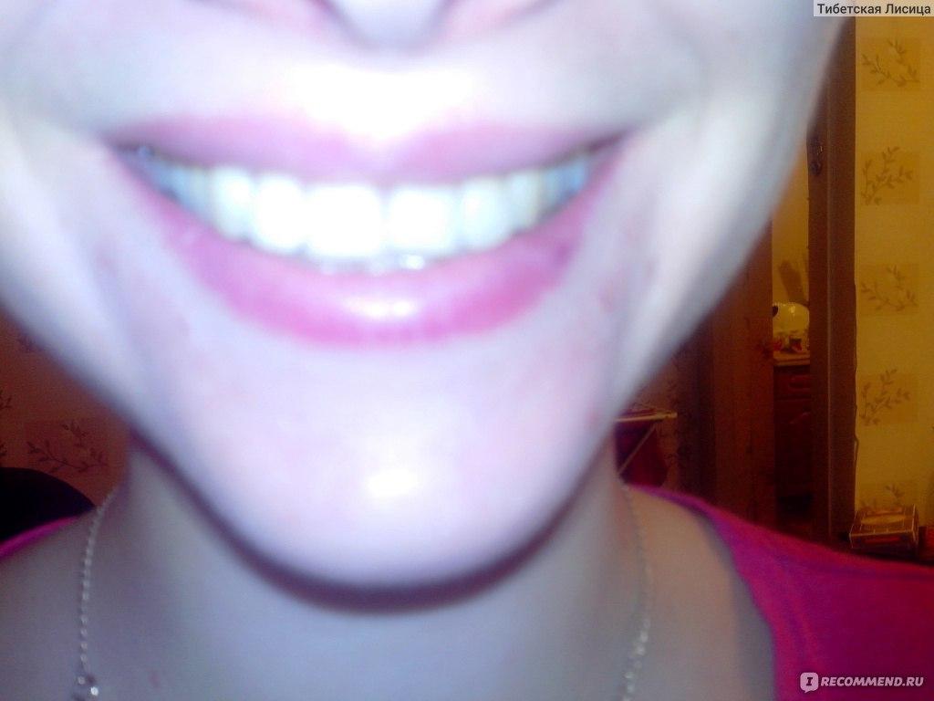 карандаш рокс для отбеливания зубов отзывы