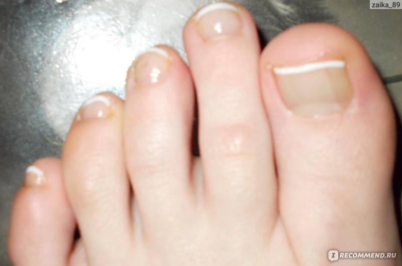 Фото ногтей на ногах французского маникюра