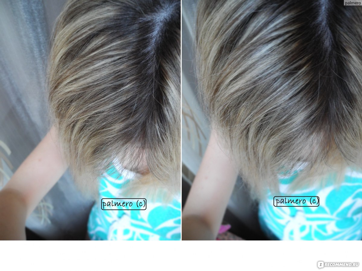 желтый налет на волосах яичек