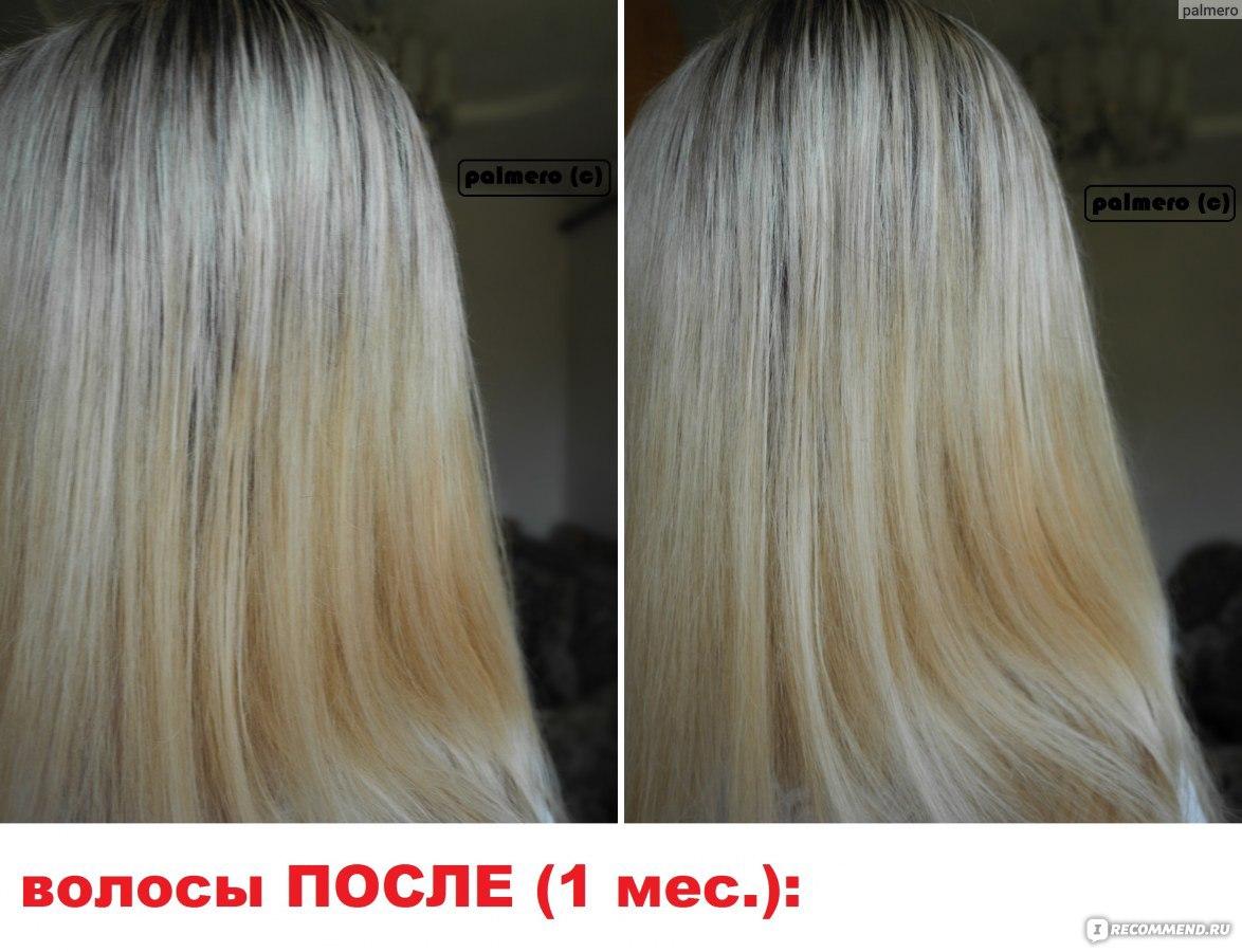 Витамины пропить от выпадения волос фото
