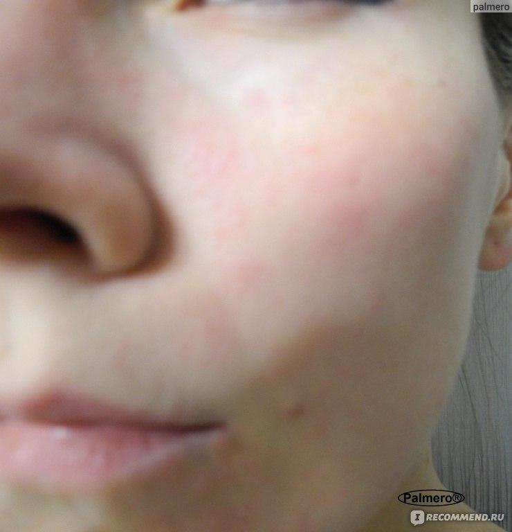 хлористый кальций пить внутрь при аллергии
