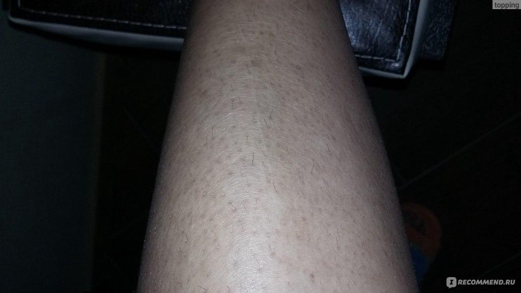 При похудении кожа чешется 3