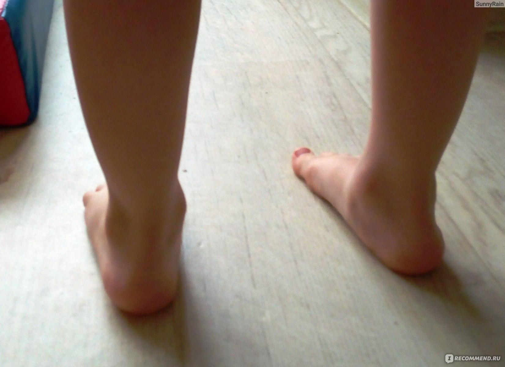 Вальгусная деформация стоп у детей фото