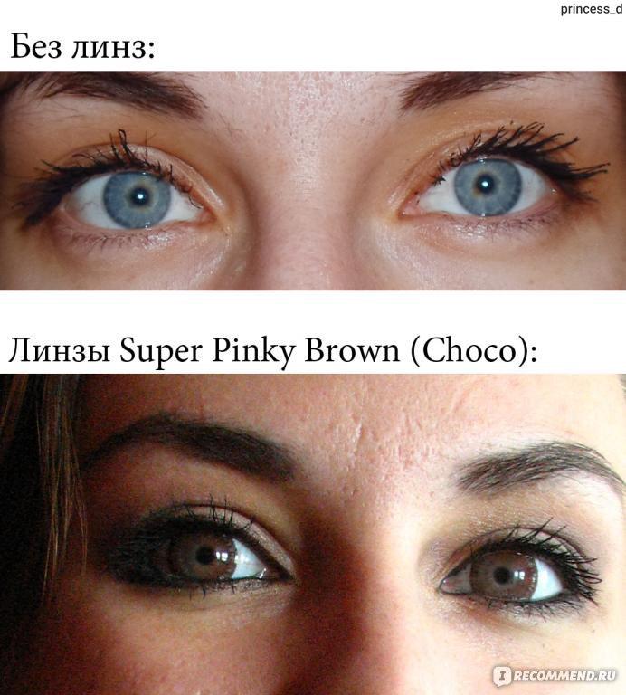 увеличивающие линзы до и после фото