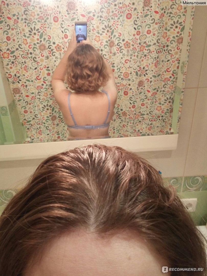 Кальций для волос: отзывы о пользе кальция от выпадения волос