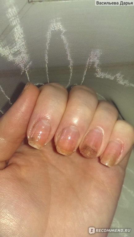 Аллергия на ногтях рук