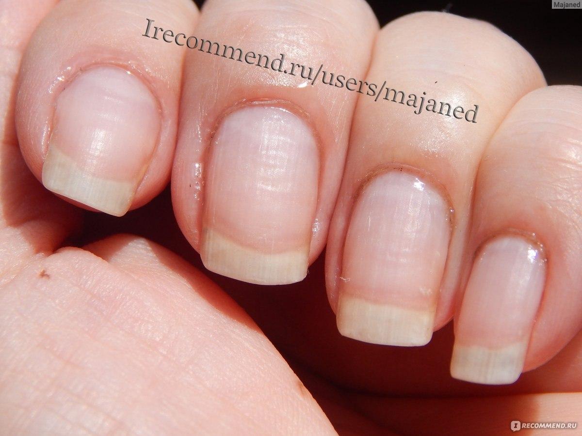 Как быстро вырастить ногти в домашних условиях, 9
