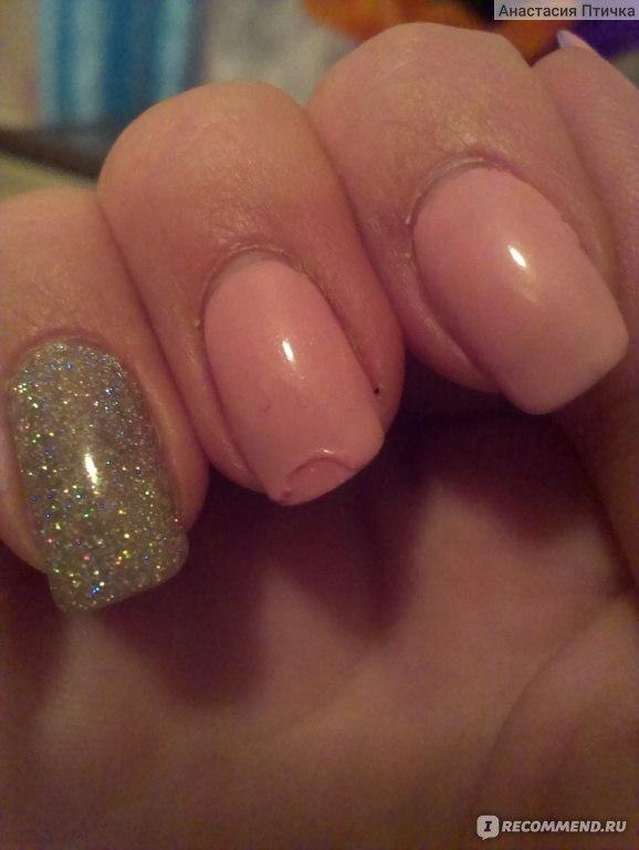 Грибок ногтевой можно заразиться