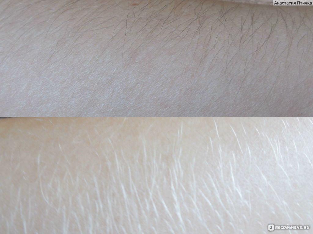 Как волосы на руках сделать светлее