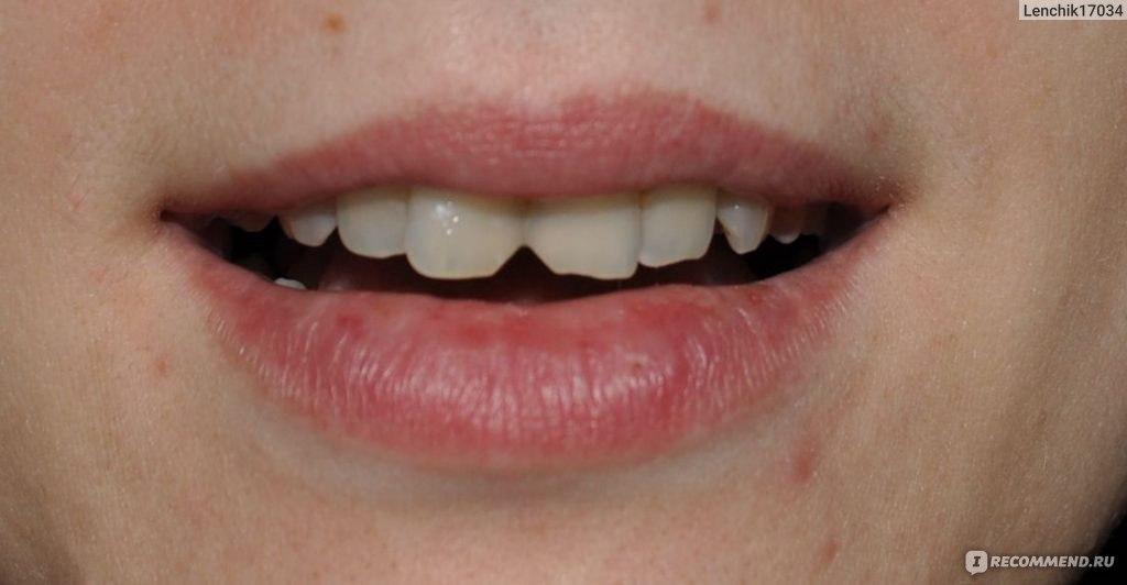 Что делать когда сточили зуб