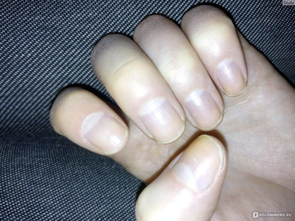 Воспаление кутикулы ногтя лечение