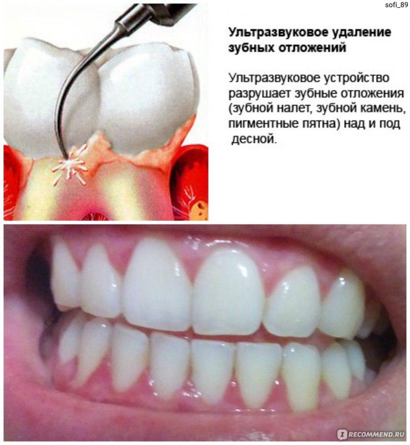Удалять зубной камень в домашних условиях 87
