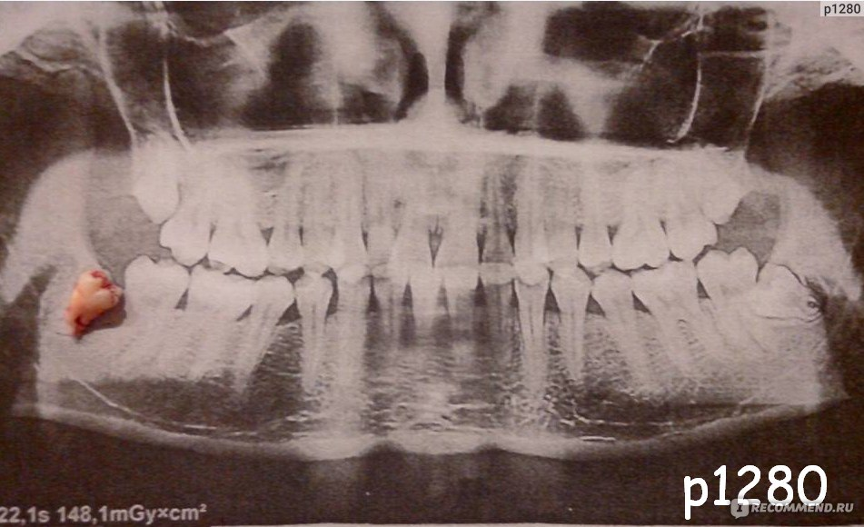 определитесь: можно ли делать снимок на зуб беременной принято называть