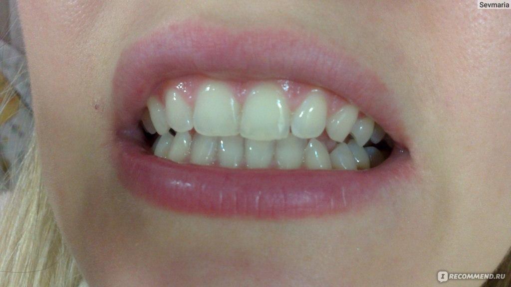 Средство для отбеливания зубов Crest в Москве
