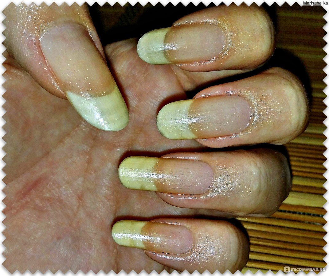 Чем укреплять ногти в домашних условиях йодом 305