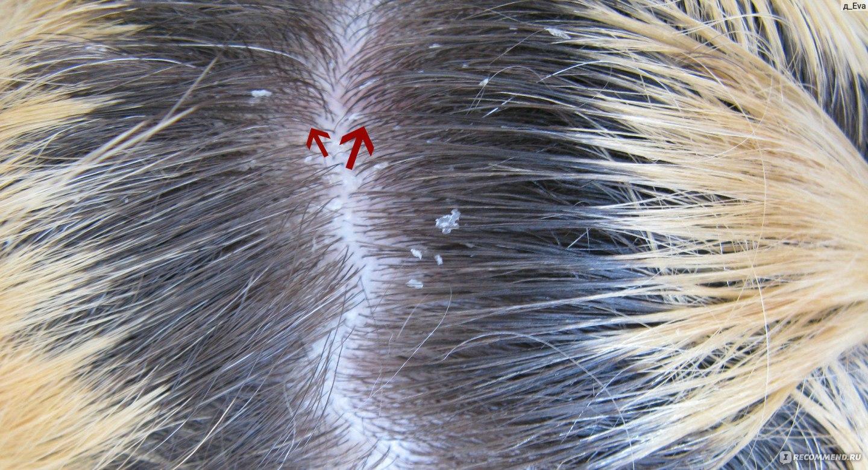 Как вылечить себорею на коже головы 79