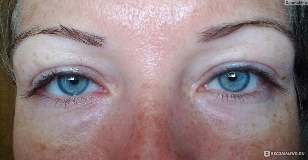 Почему под глазами большие синяки