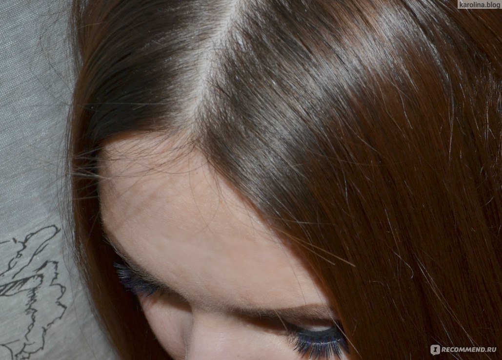 Волосы не растут вообще всегда одной длины