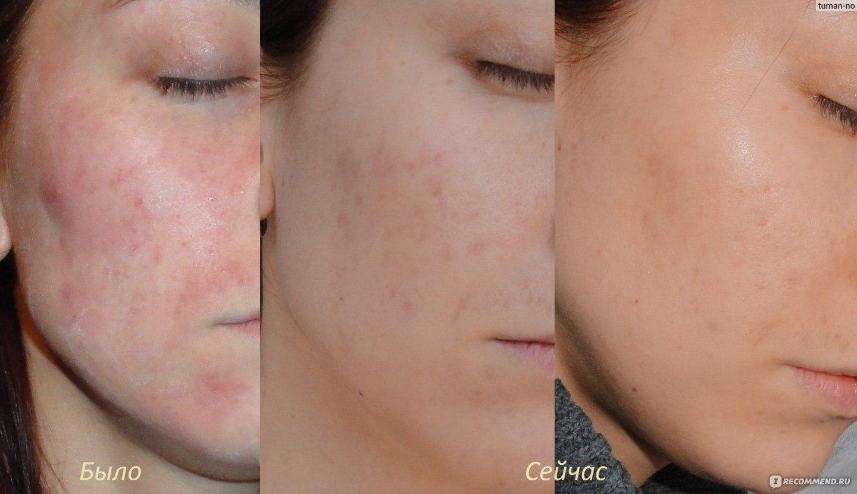 аллергия на коже от гель лака