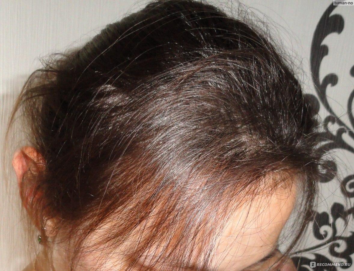 Витамины для масок для волос