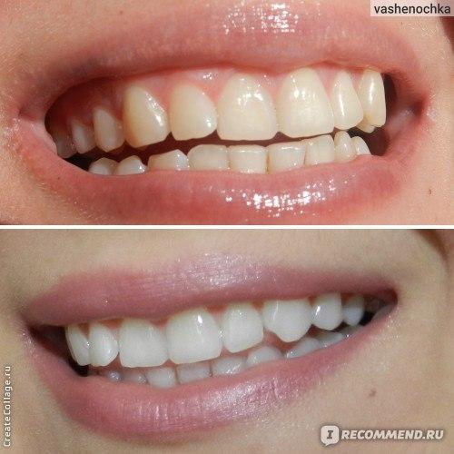 отбеливание зубов больно ли это