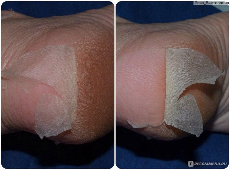 Как отшелушивать кожу в домашних условиях 9