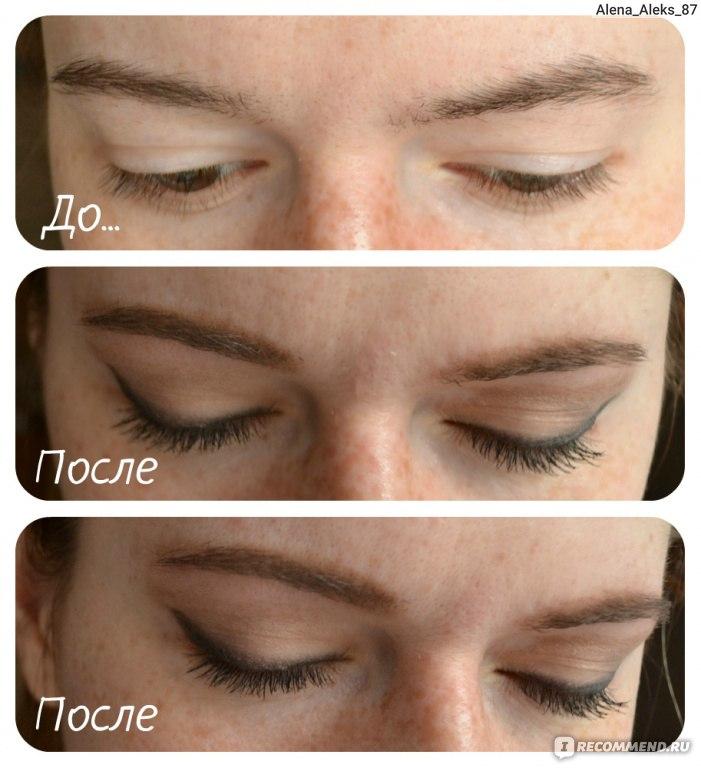 полоски для удаления волос на лице