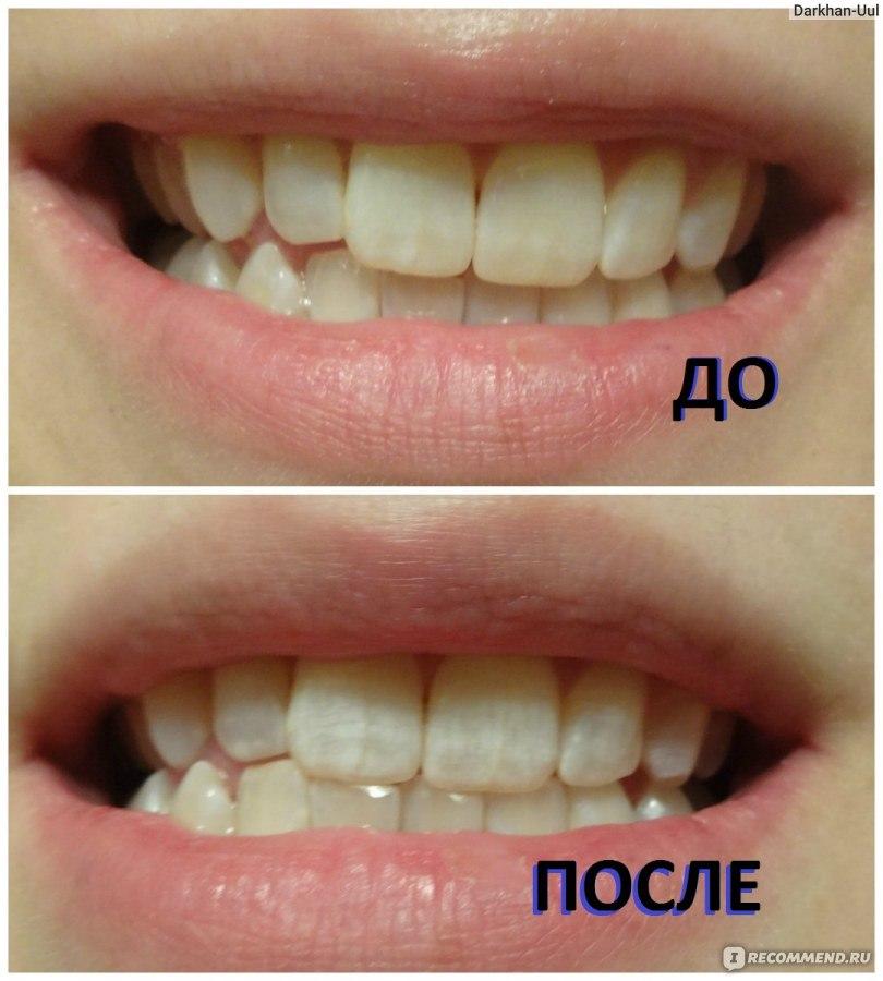 3д полоски для зубов отзывы