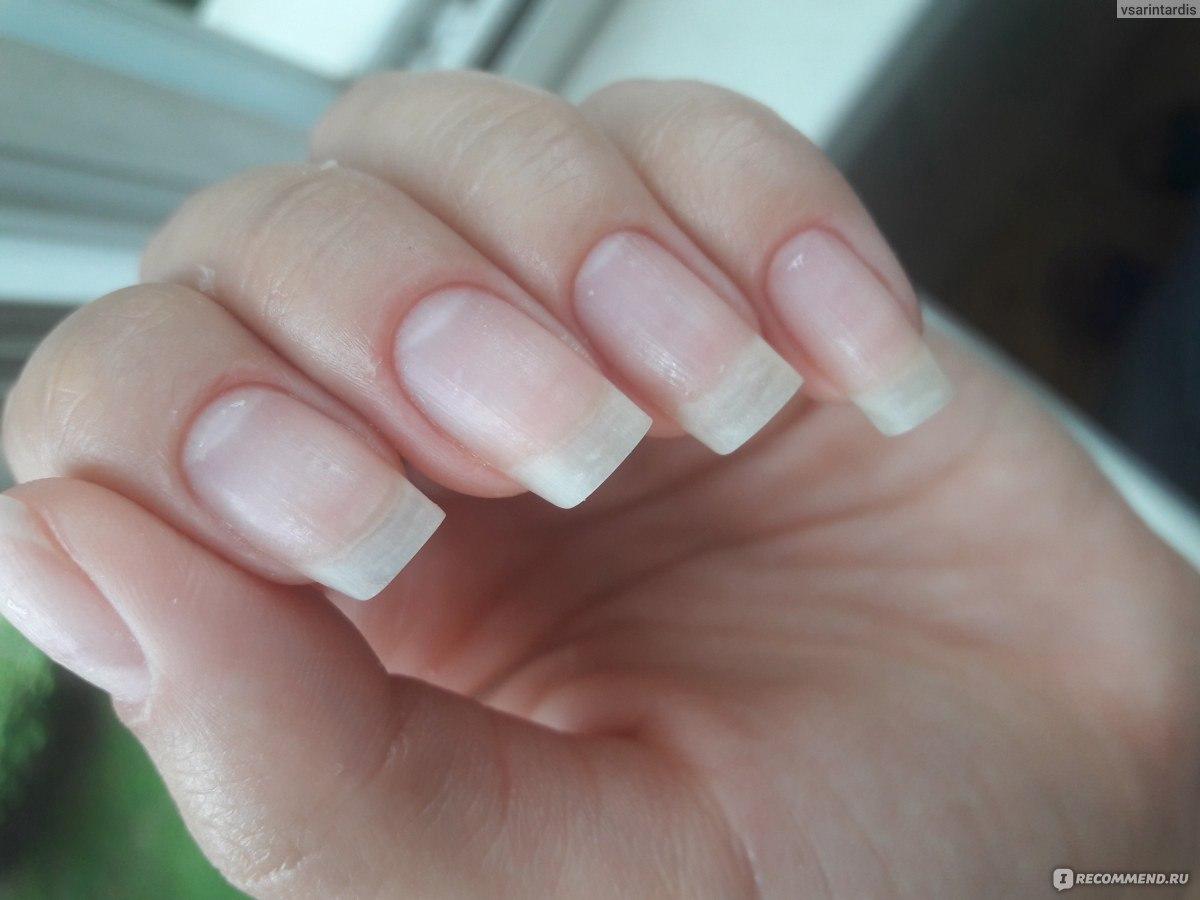 Проблемы с ногтями после шеллака фото