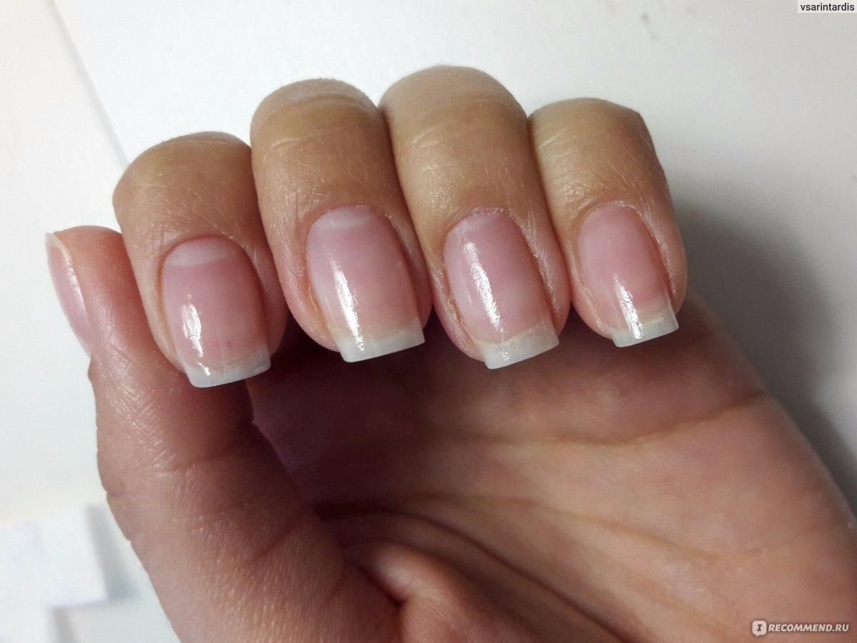 Как выглядит ногти после снятия шеллака фото