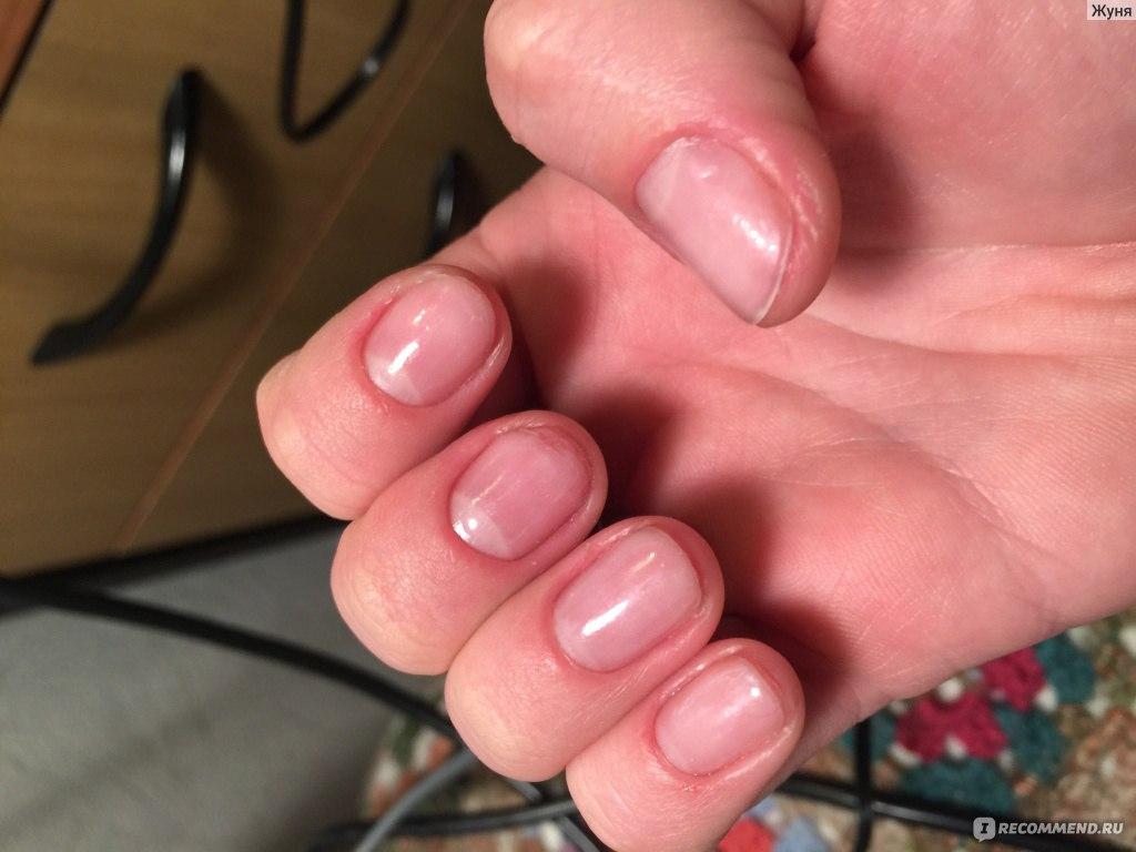 Чем быстро восстановить ногти после наращивания в домашних условиях 949