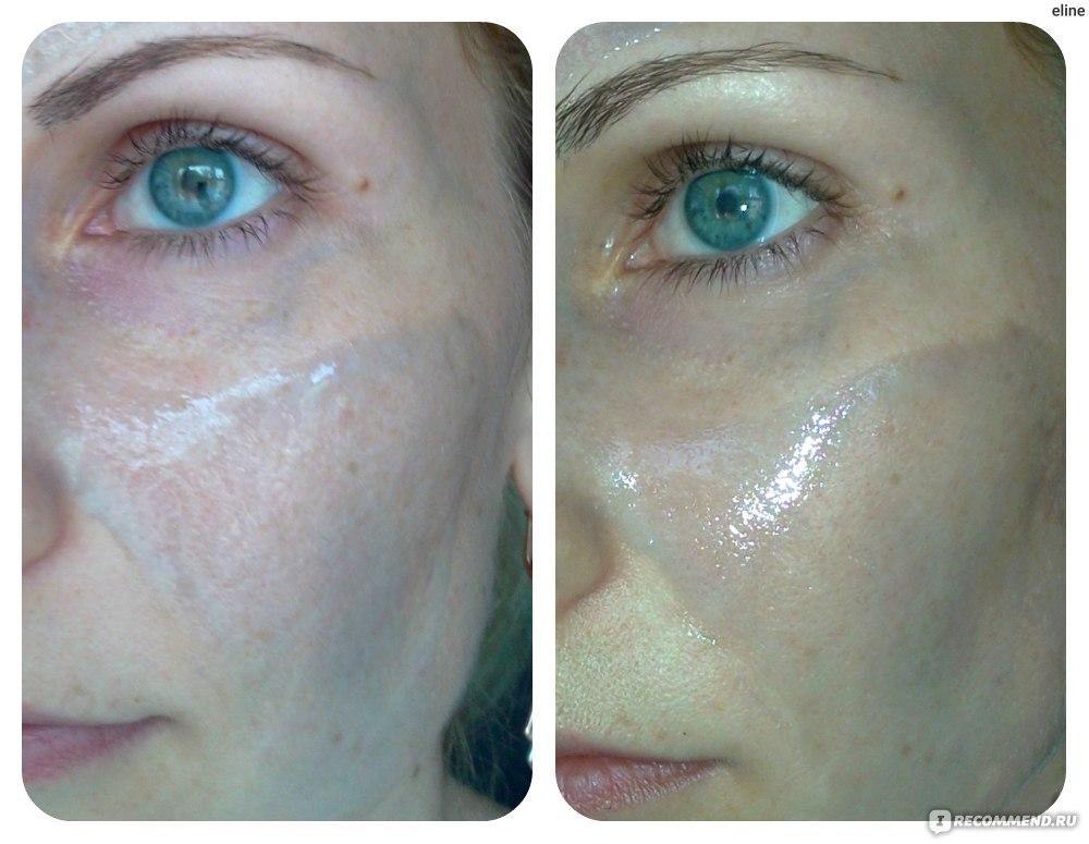 как снять аллергию с лица