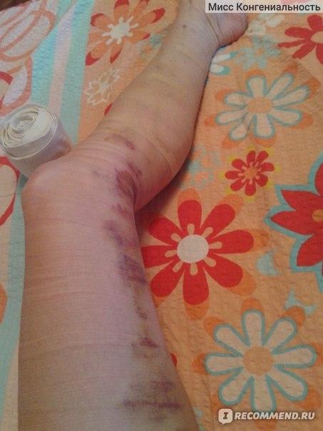 Шелушение кожи тромбофлебит