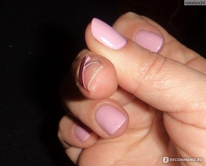 Почему откалывается гель лак на кончиках ногтей