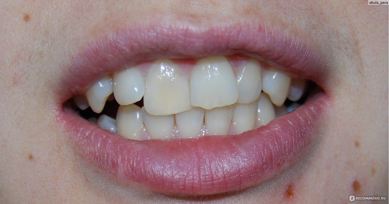 отбеливание зубов rocs
