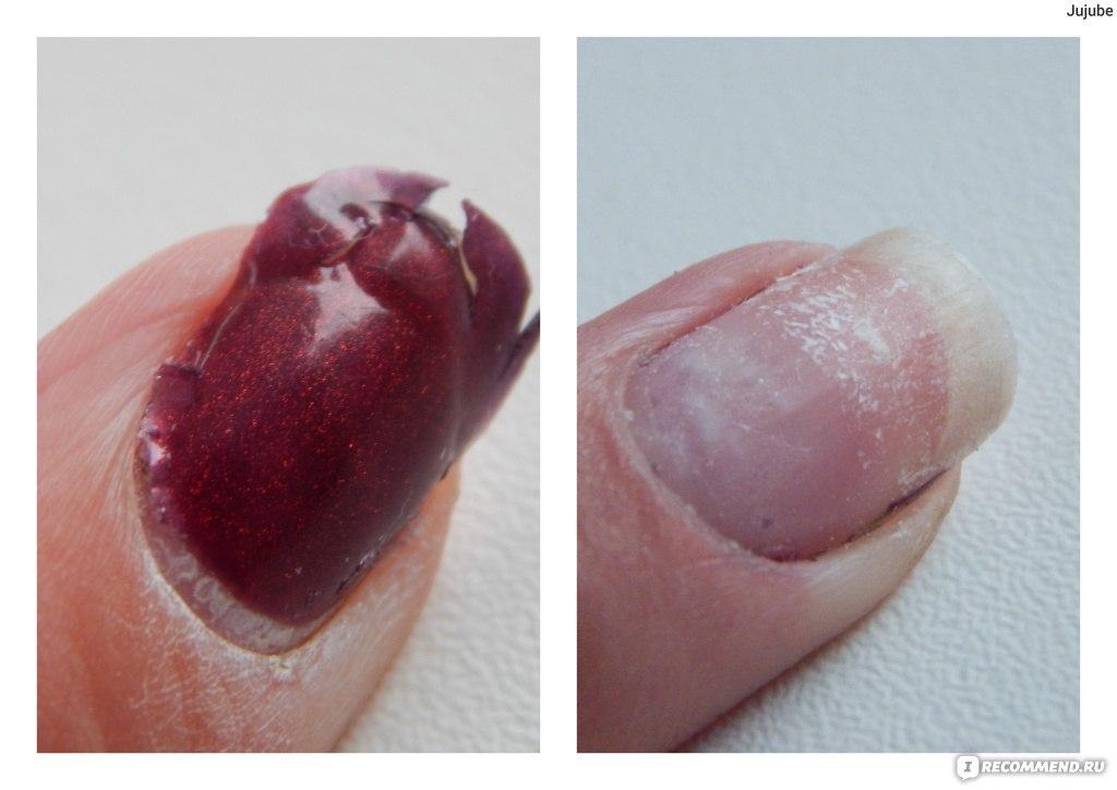 Что делать если лак для ногтей испортился