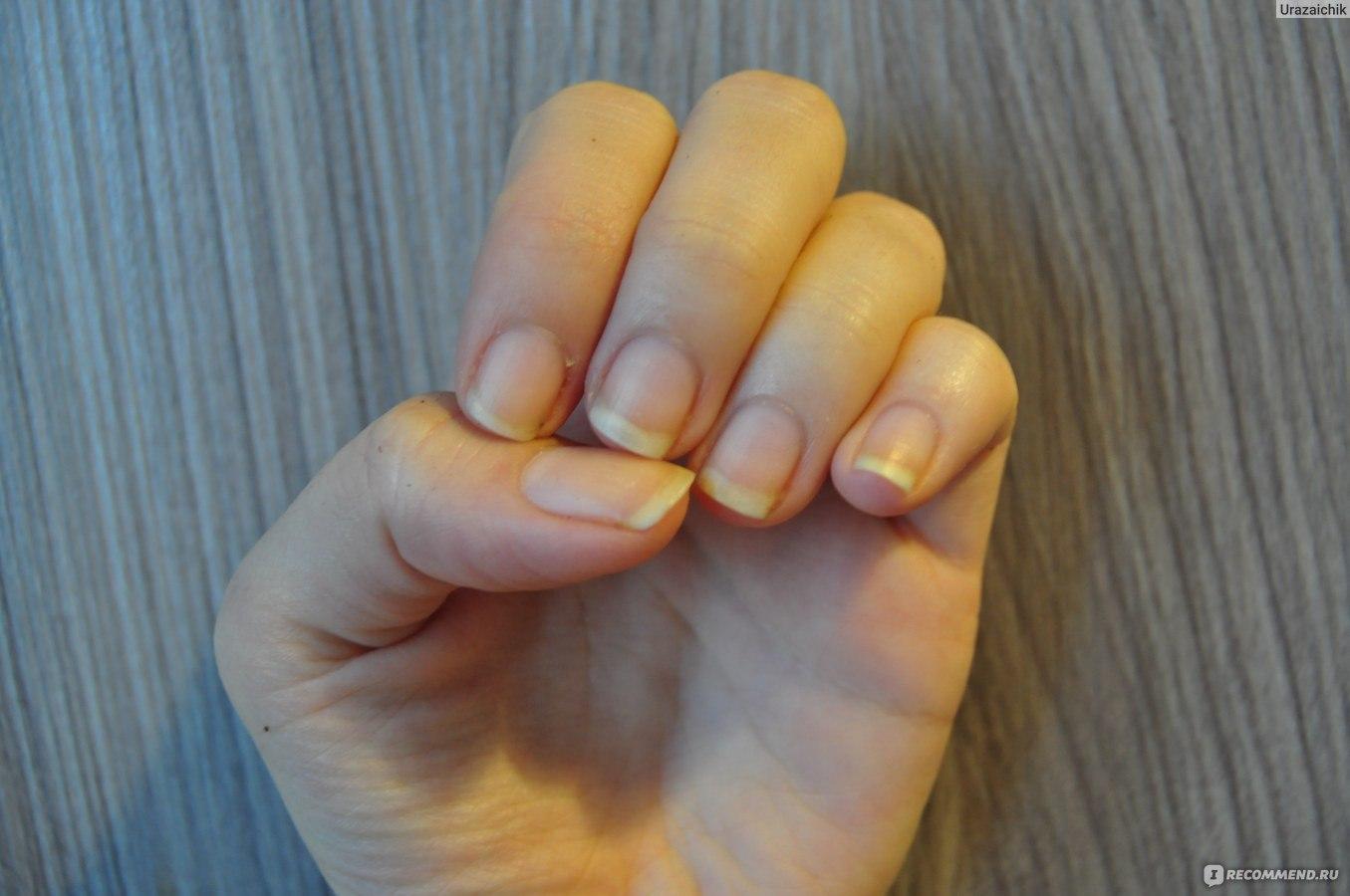 К чему снятся сломанные ногти своими руками