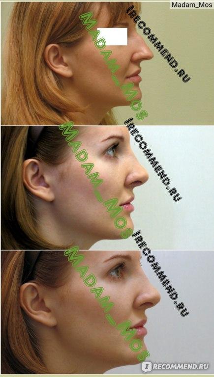 Что нельзя после ринопластики носа